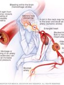 High Blood Pressure Dangers: Hypertension's Effects on Your Body