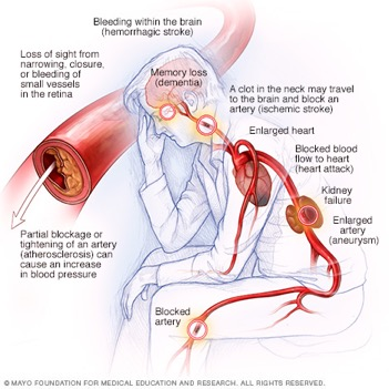 High Blood Pressure Dangers Hypertension S Effects On