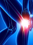 10 Answers to Questions About Knee Replacement Surgery